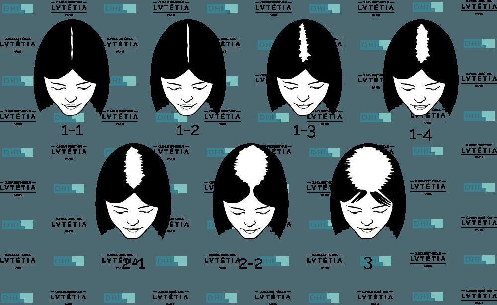 Peuvent tomber les cheveux de metformina