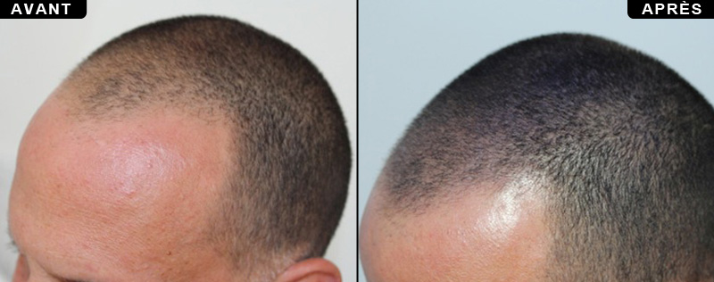 la micro-pigmentation du cuir chevelu avant après