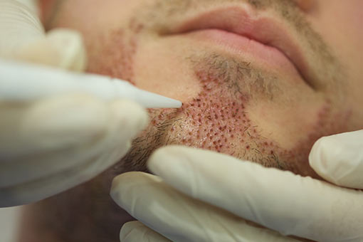implants de barbe dhi