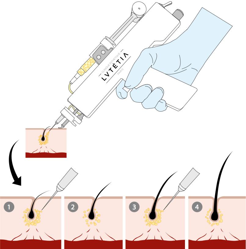 Injections de PRP avec le pistolet à mésothérapie