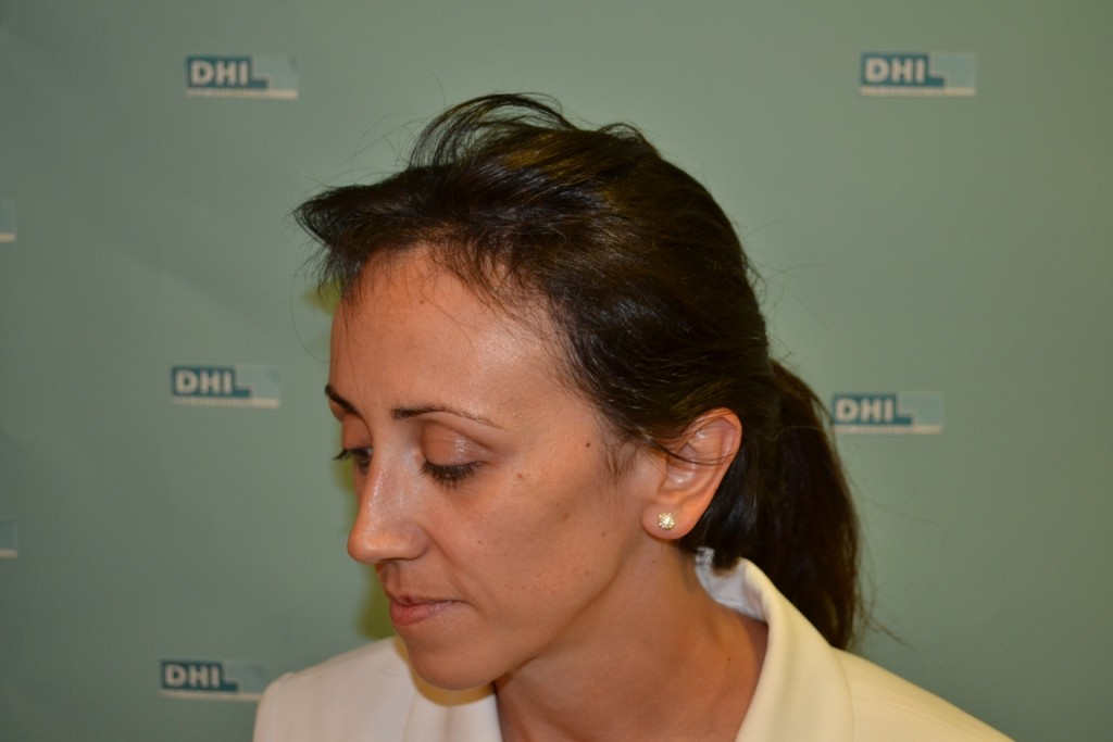 DHI-Female-Result-3-After-4