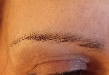 Eyebrows-Micropigmentation-Result-1-Before