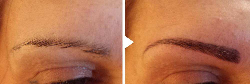 Patiente MPG sourcils 2