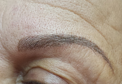 Eyebrows-Micropigmentation-Result-2-After