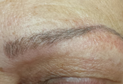 Eyebrows-Micropigmentation-Result-3-After