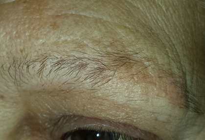 Eyebrows-Micropigmentation-Result-3-Before