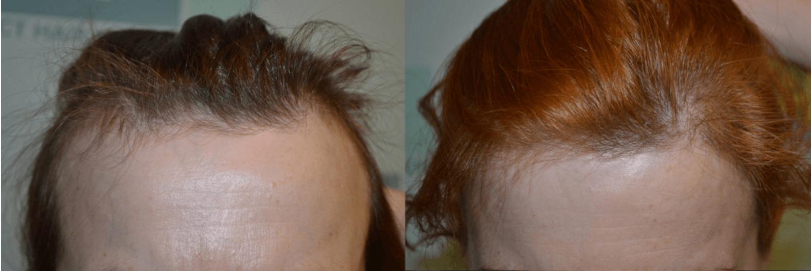 Perte de cheveux diffuse chez la femme