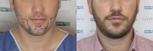 Résultat greffe de barbe avant après
