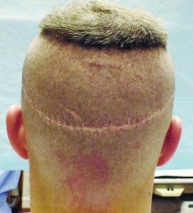 La cicatrice après une greffe en FUT