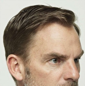 Ronald-De-Boer-Hair-Transplant-After-2
