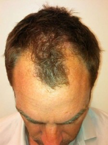 Ronald-De-Boer-Hair-Transplant-Before