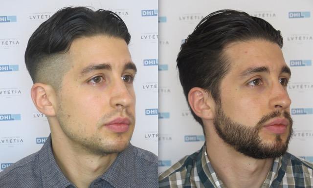 Avant apres greffe de barbe DHI