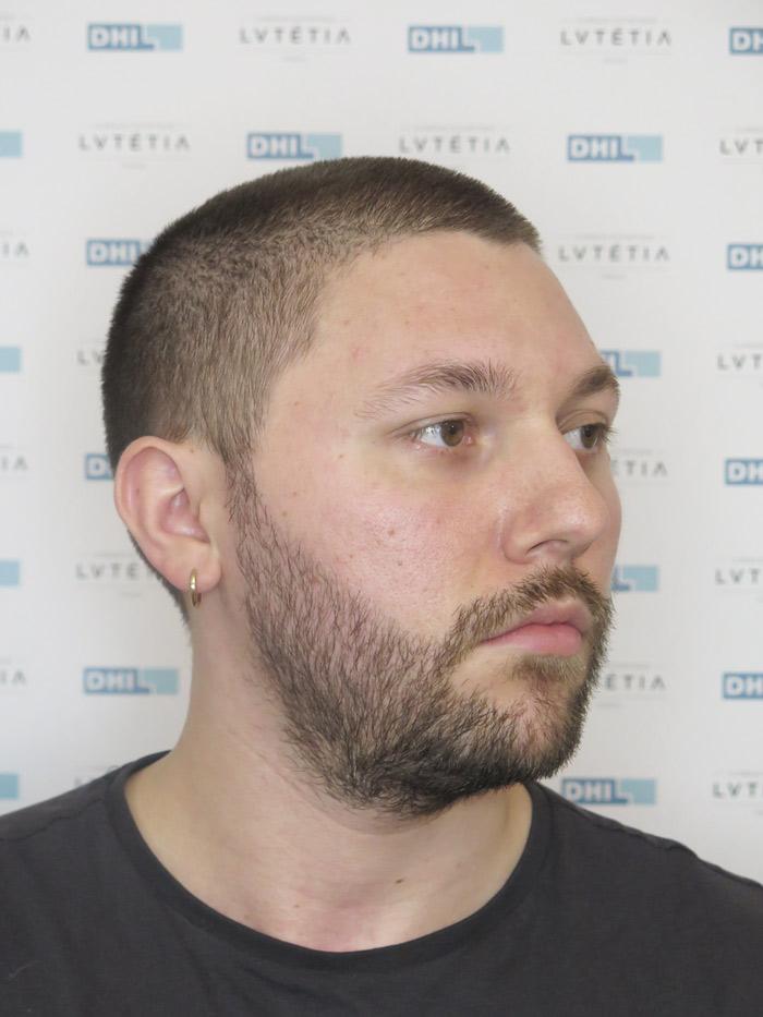 barbe2-DHI-profil-droit-apres-6-mois