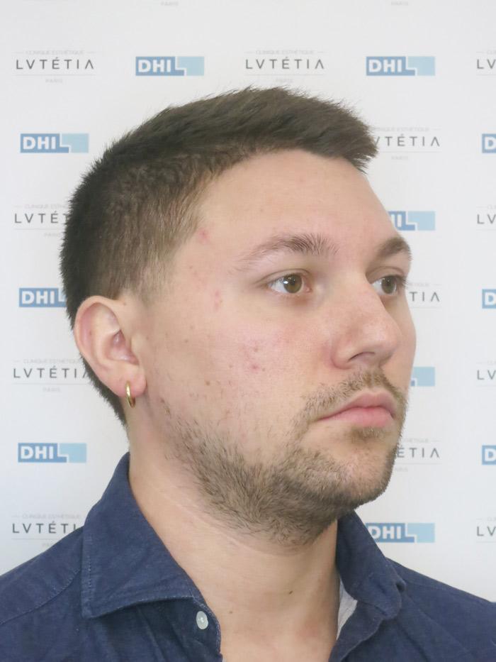barbe2-DHI-profil-droit-avant