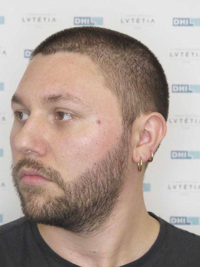barbe2-DHI-profil-gauche-apres-6-mois