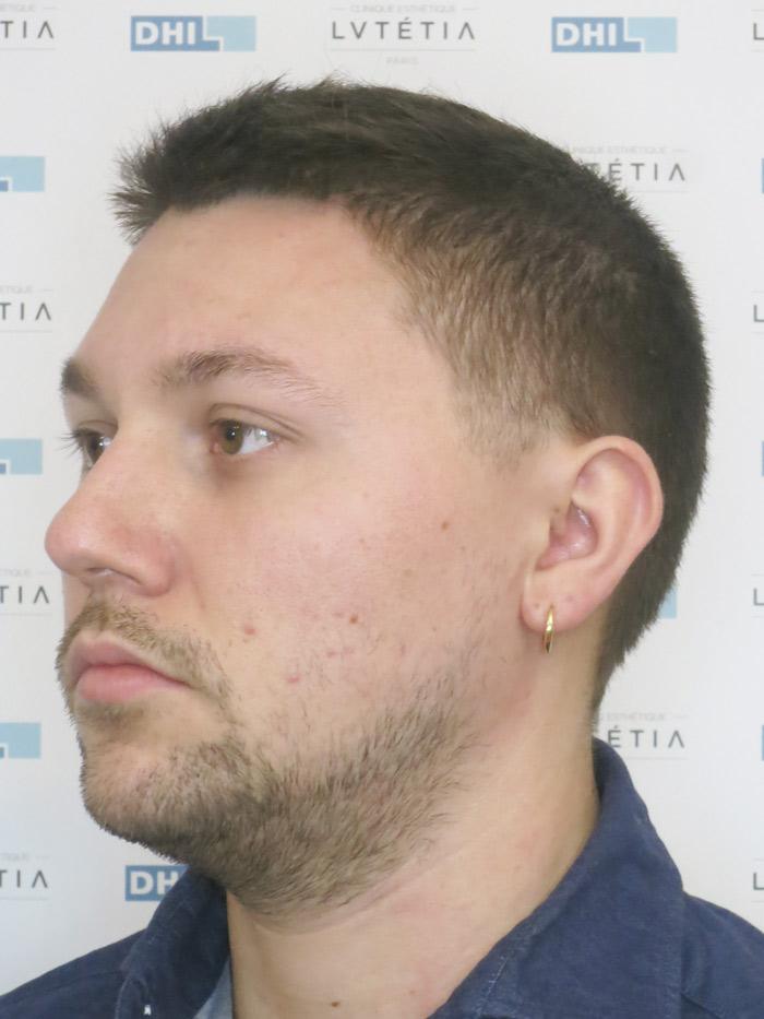 barbe2-DHI-profil-gauche-avant