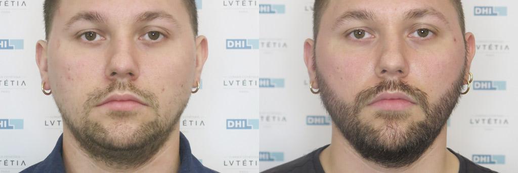 Patient DHI 31