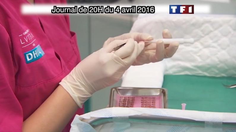 implantation greffe de cheveux DHI