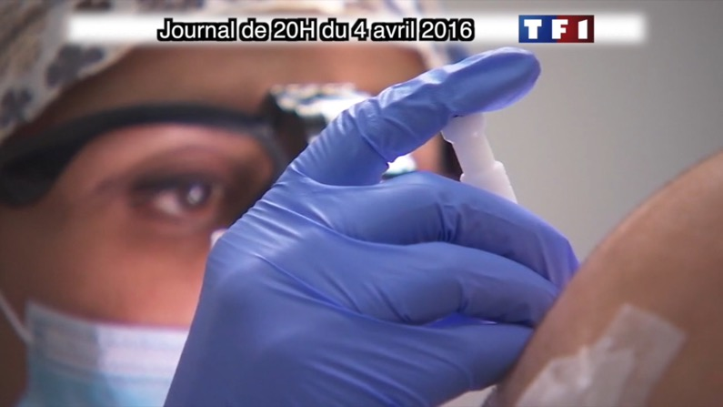 implants capillaires méthode DHI TF1