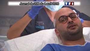 implants cheveux TF1 DHI France