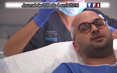La greffe de cheveux DHI au Journal de 20H sur TF1
