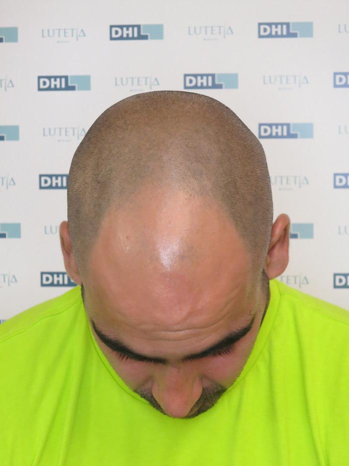 patient-DHI-32-2016-face-haut-avant