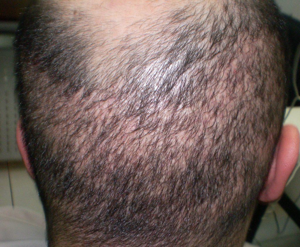 une intervention de greffe de cheveux ratée