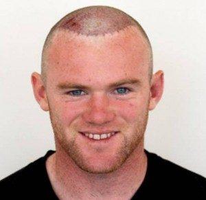 Wayne Rooney après sa greffe de cheveux avec DHI