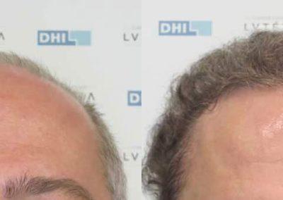 Patient DHI 35