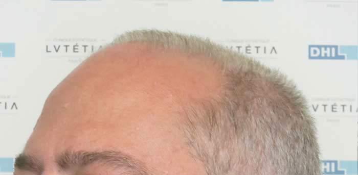 profil-gauche-avant