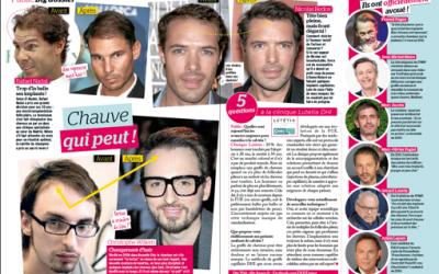 On parle de la greffe de cheveux par DHI dans le magazine PUBLIC