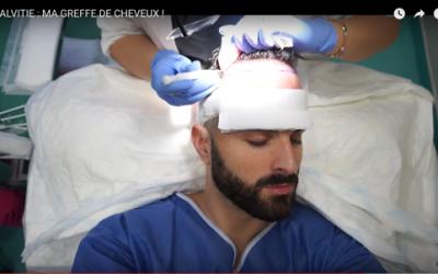 La greffe de cheveux de Winslegue en vidéos