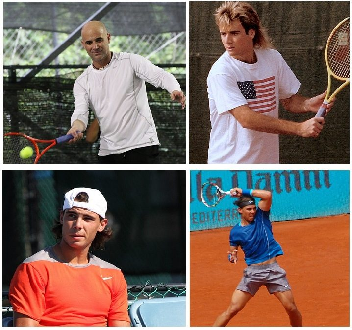 agassi-cheveux-nadal-greffe-dhi