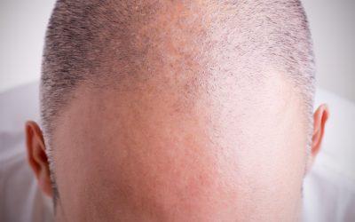 La croissance des cheveux stimulée grâce aux cellules souches