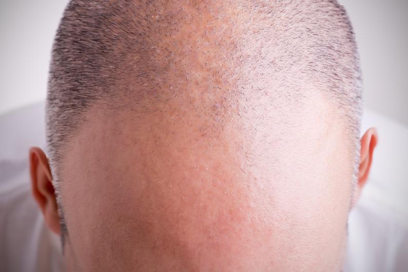 cellules souches contre chute de cheveux